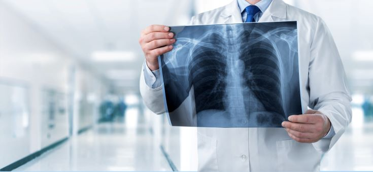doctor looking at xray of lungs for signs of aspiration pneumonia